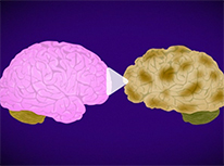 two brains. one pink, one brown
