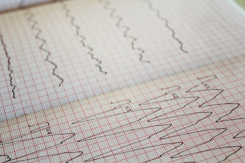 electrocardiogram paper