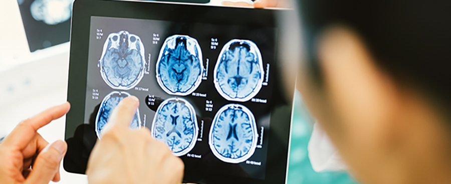 health care workers looking at brain scans