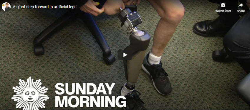 A Giant Step Forward in Artificial Legs, Dr. Jason Stoneback