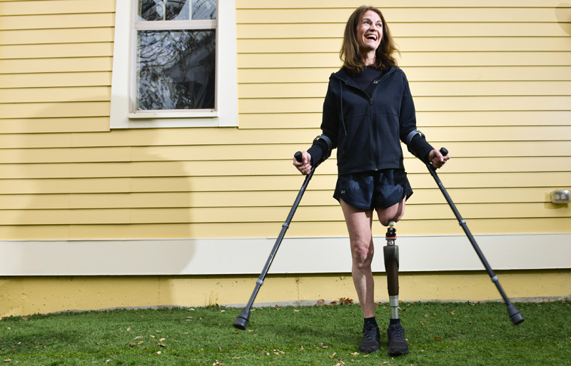 Osseointegration surgery gives amputee hope for better, faster, stronger life