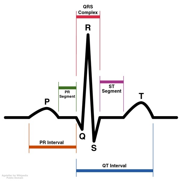 Schematic diagram of normal sinus rhythm for a human heart as seen on Electrocardiogram