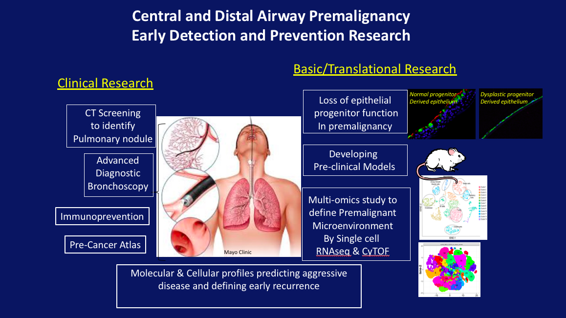 Pulmonary Malignancy Program